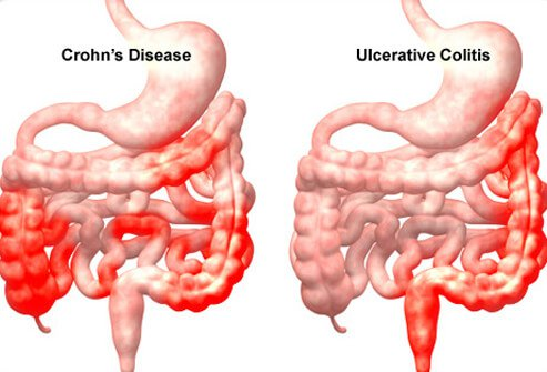 Foods To Eat With Crohn S