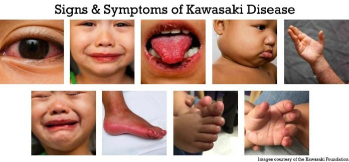 64 NY Children Sickened With The Mysterious COVID-Related ...